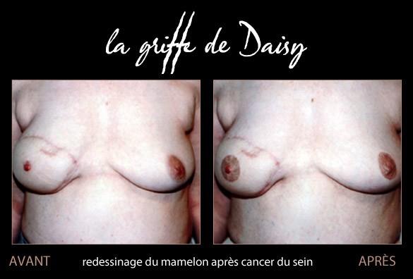 redessinage-du-mamelon-apres-cancer-seins-03.jpg