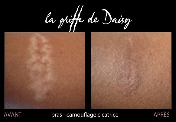 cicatrices-bras-01.jpg
