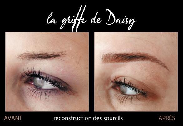 reconstruction-des-sourcils-05.jpg